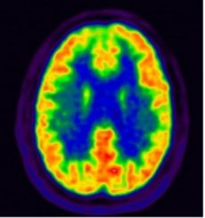 about Parkinson's disease 15 brain scan