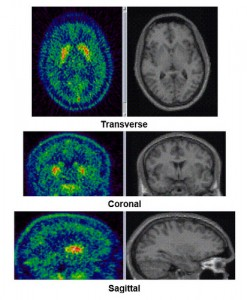 about Parkinson's disease 16 brain scans